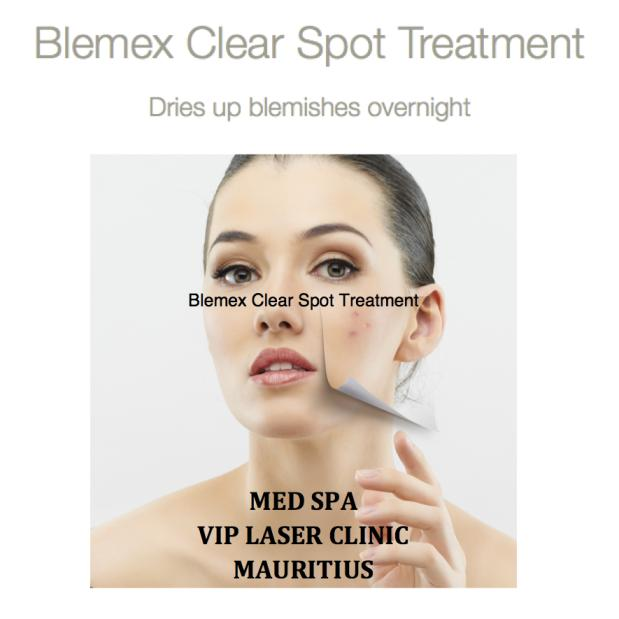 Vip laser clinic med spa mauritius blemex acne clear for Acne salon treatments